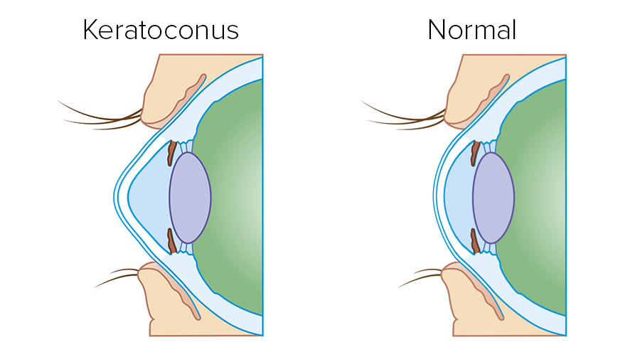 Keratoconus demo
